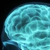 نانوذرات و دارورسانی به مغز